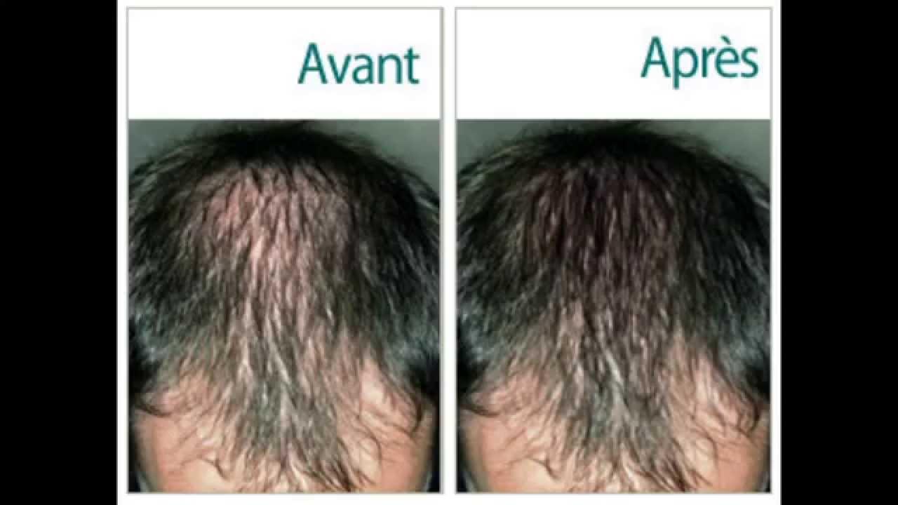 traitement pour les chutes de cheveux