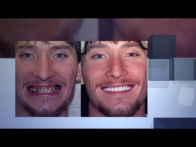 G4 By Golpa - Precision Implant Dentistry - Tyson's Corner, VA