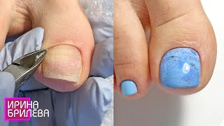 PEDICURE 🌸 Hyperhidrosis 🌸 Processing of feet and toes
