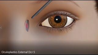 Oculoplastics AAO External DCR