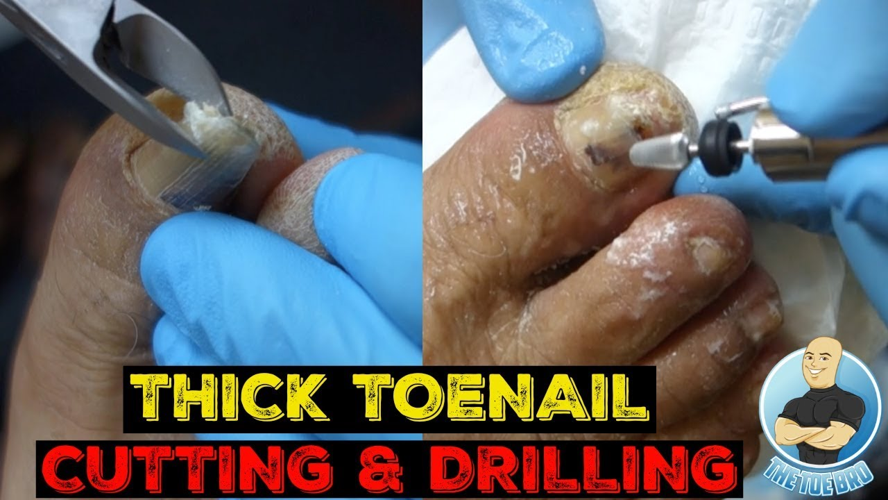 How To Fix A Thick Damaged Toenail In 5 Minutes Youtube