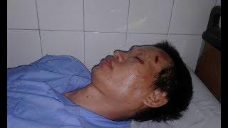 TPHCM: Người biểu tình chống Luật Đặc khu bị đánh chấn thương sọ não