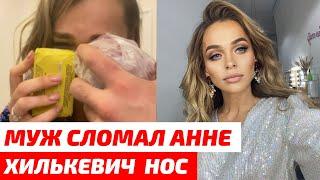 Муж СЛОМАЛ Анне Хилькевич нос в новогоднюю ночь
