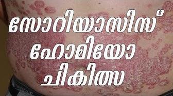 സോറിയാസിസ് ചികിത്സ ഹോമിയോപ്പതിയിൽ  | Malayalam Health Tips Videos | Arogyavicharam 36