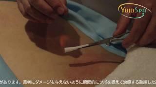 火鍼 - 究極の鍼治療 - YOJOSPA thumbnail
