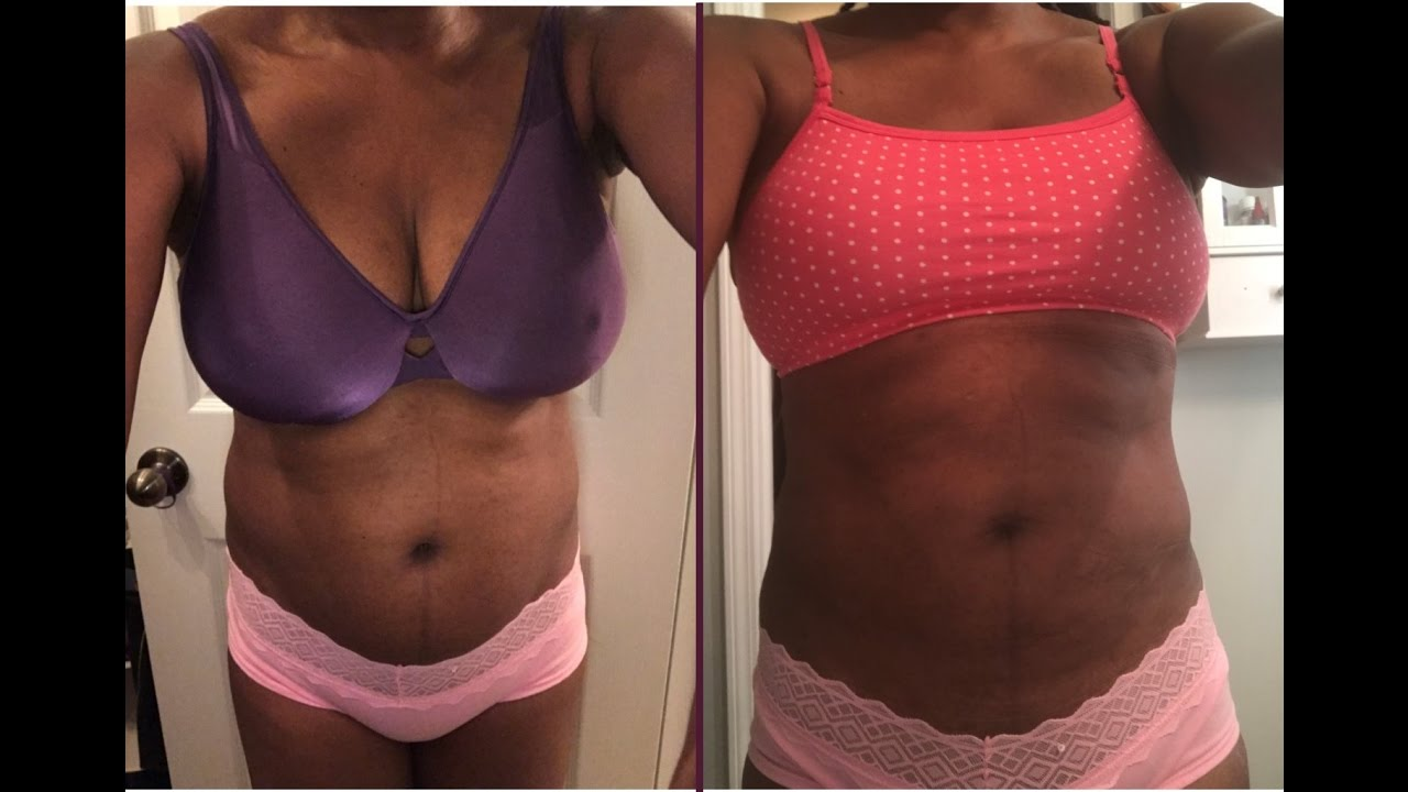 Week 2 Post Breast Reduction Surgery Update Youtube