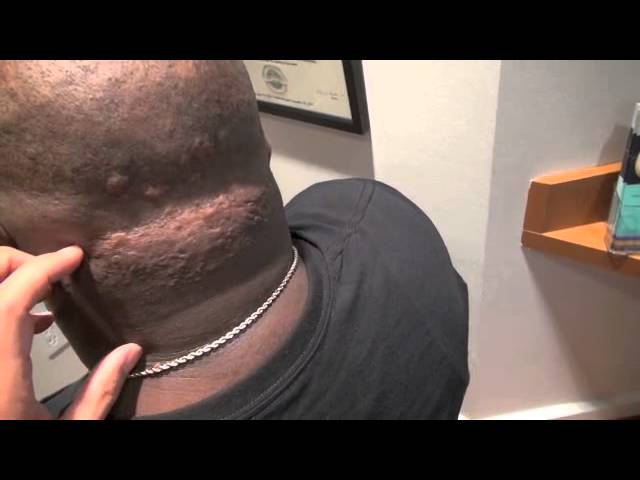 Head/Scalp Keloid Correction for African-American Patient in Dallas, Texas