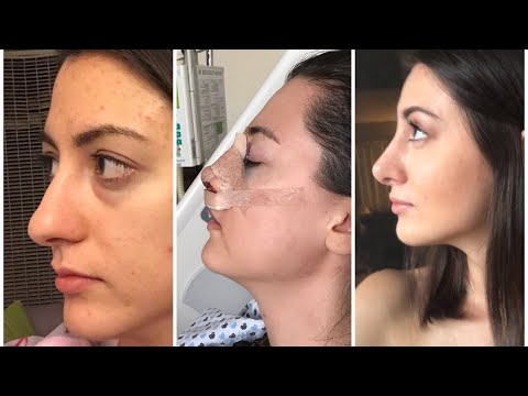 1- 6 months rhinoplasty update | month by month nose job  recovery| video download