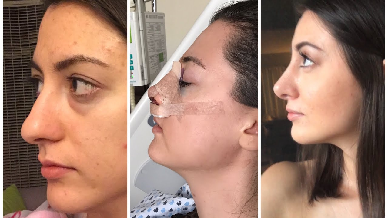 1 6 Months Rhinoplasty Update Month By Month Nose Job Recovery Youtube