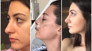 1- 6 months rhinoplasty update | month by month nose job  recovery|