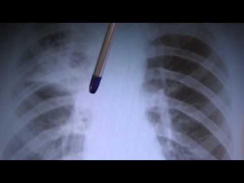 Как выглядит туберкулез легких