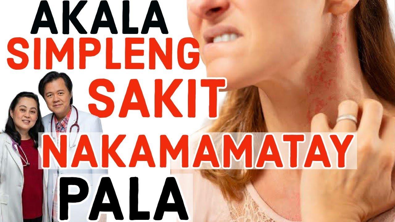 Simpleng Sakit Lang, Pero Nakamamatay Pala!  - Payo ni Doc Willie Ong #150c