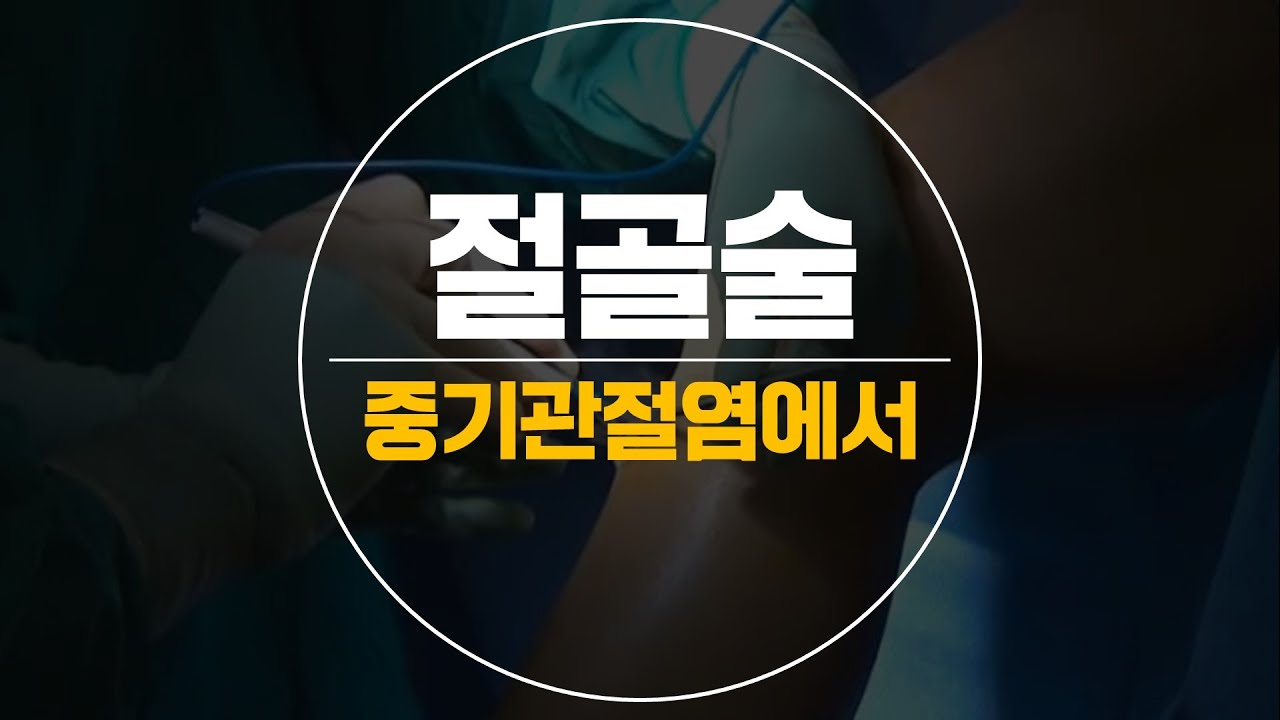 휜다리 교정하는 근위경골절골술 권제호원장