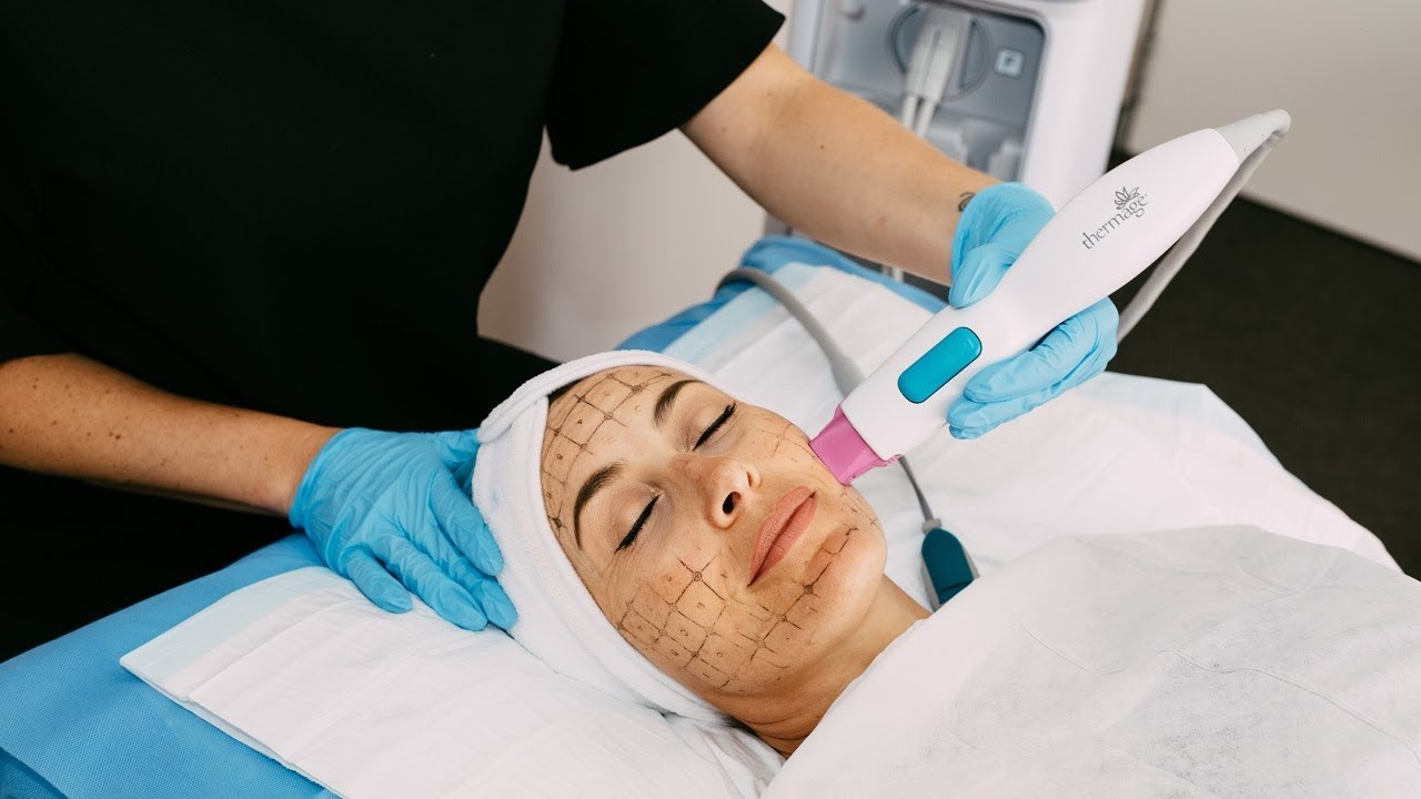 Thermage FLX Skin Tightening Treatment Sydney | The Clinic
