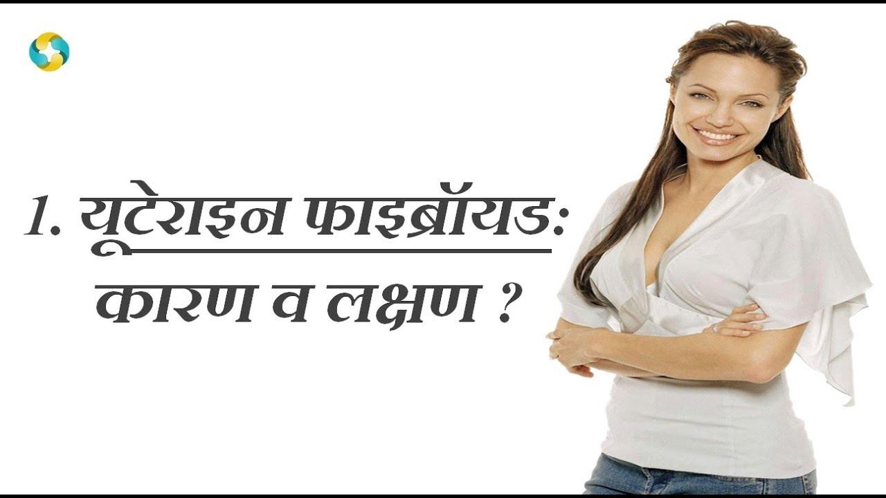 Uterine Fibroid In Hindi   Fibroid Kya Hota Hai   रसौली के लक्षण -1