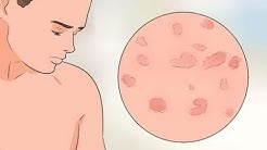 ¿Qué es la psoriasis guttata?