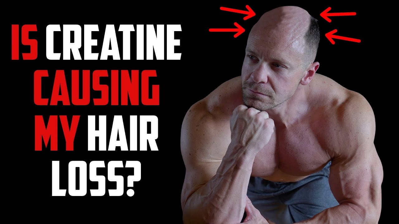 Does Creatine Cause Hair Loss Tiger Fitness Youtube