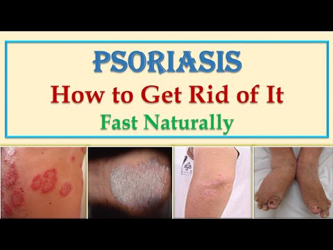 Best Natural Home Remedies and Cures for Scalp and Skin Psoriasis Treatment