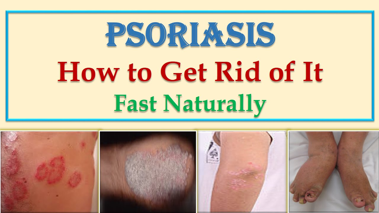 Natural Cure For Skin Psoriasis