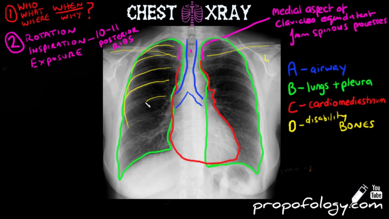 learn to read a chest xray in 5 minutes  [ 1280 x 720 Pixel ]
