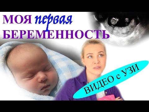TAG - Моя Беременность | Видео УЗИ на 11 неделе | Первая Беременность в Америке