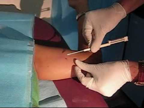 como se pone implante anticonceptivo
