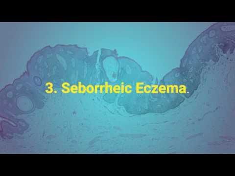 4 Common Types Of Eczema  –  Eczema Free Forever Excerpt
