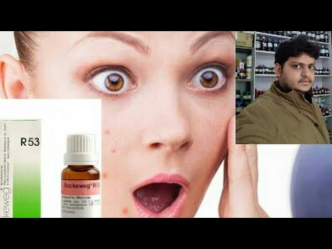 homoeopathic medicine for acne pimple
