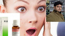 hqdefault - What Is A Homeopathic Remedy For Acne