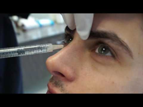 Nose Augmentation | Non Surgical Rhinoplasty | Voluma Injection | Beverly Hills California