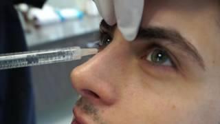 Non-Surgical Nose Job | Rhinoplasty with Voluma Injection | Non-Surgical Rhinoplasty | Dr Jason Emer