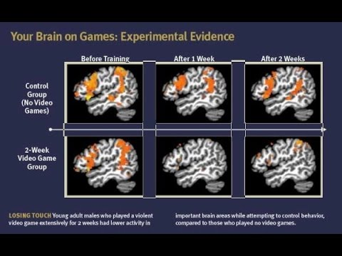 Video Games Damage The Brain