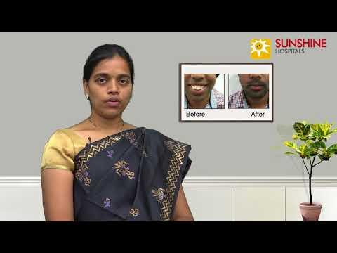 Watch Dr. Navatha, Consultant Facial Surgeon, talk about Facial profile, jaws, Correction surgeries