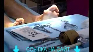 Растет косточка большого пальца на ноге. Поможет Valgus Pro Plus. Лечение, цена, отзывы, купить.(http://goo.gl/pzGnef Растет косточка на ноге. Способы лечения деформации сустава большого пальца ноги. Valgus Pro Plus валь..., 2014-07-27T13:13:29.000Z)