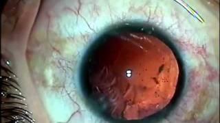 Debilidad Zonular - Catarata y anillo de tensión capsular.m4v