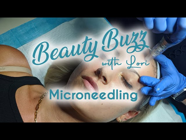 Beauty Buzz with Lori: Microneedling