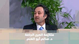 متلازمة العين الجافة - د. سالم أبو الغنم
