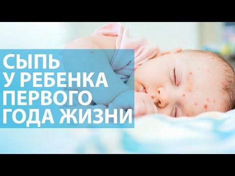 Сыпь у ребёнка до года
