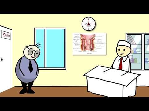 геморрой трещина лечение