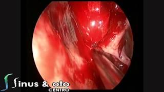 Ethmoidal Carcinoma