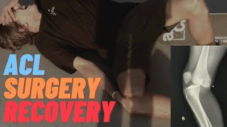 SKATEBOARDING INJURY / MCL & ACL TEAR / SURGERY & RECOVERY / 4 WEEKS POST OP