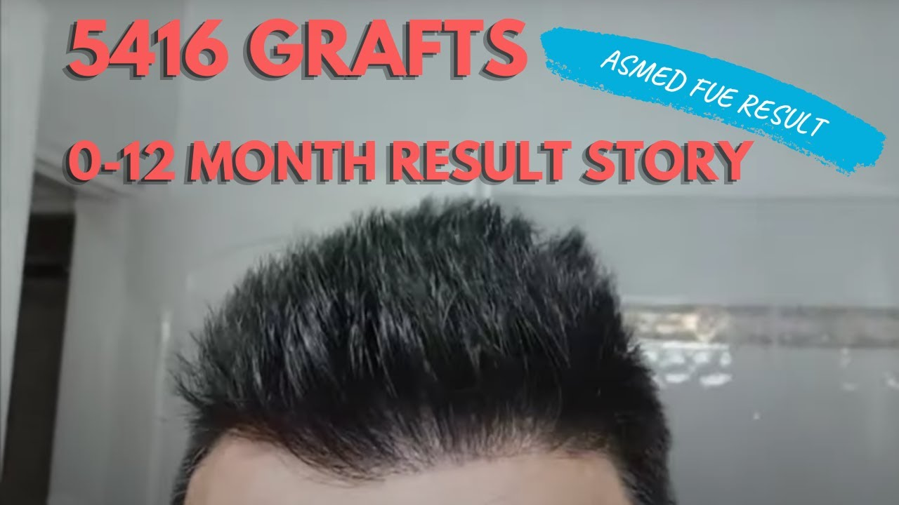 Hair transplant with Dr.Erdogan Koray (Asmed Clinic). Overharvested  donor area