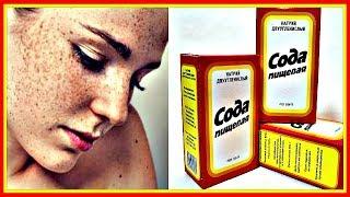 видео Как отбелить кожу лица от пигментных пятен: домашние способы