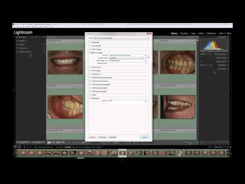 Dental Photography  How to Create a New Lightroom Metadata Preset