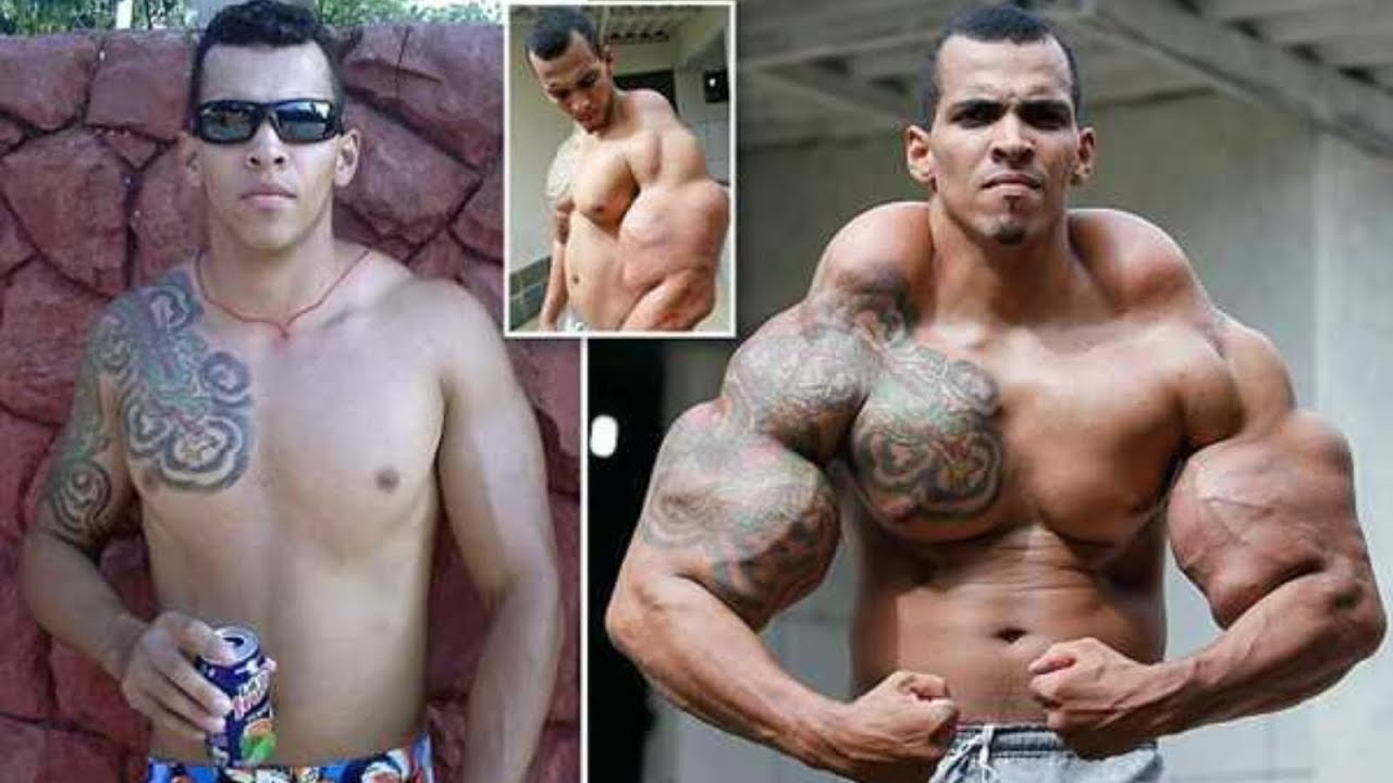SYNTHOL FREAKS | BEFORE & AFTER