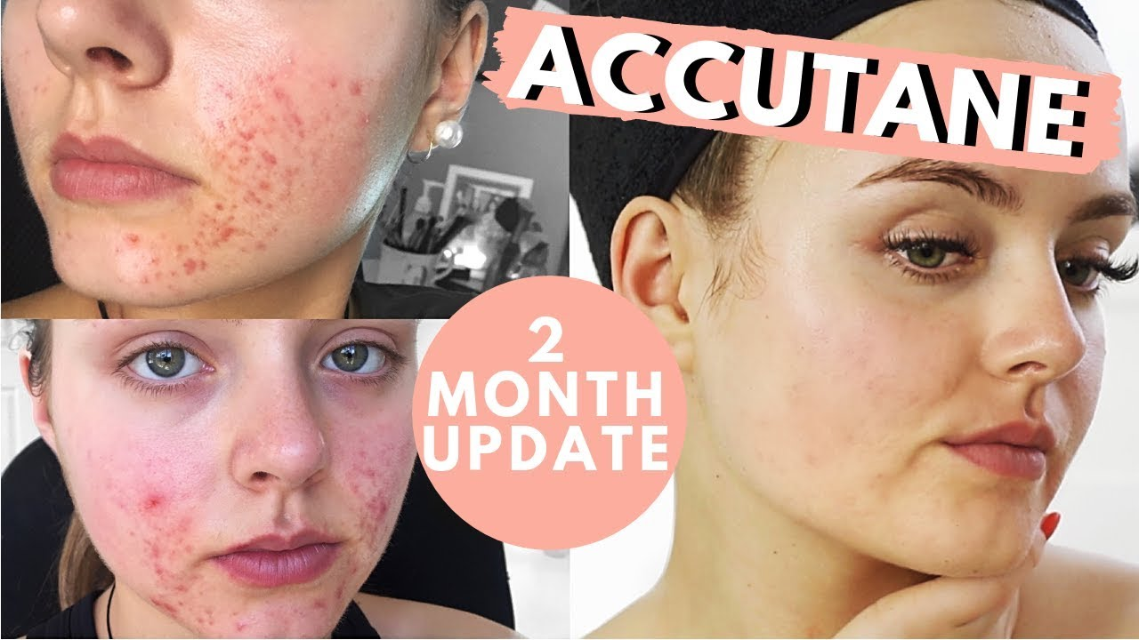 2 MONTH ACCUTANE UPDATE | SIDE EFFECTS | IS IT WORKING ...