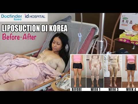(BAHASA) Before-After SEDOT LEMAK PART 2 di KOREA dengan DOCFINDERKOREA di ID HOSPITAL