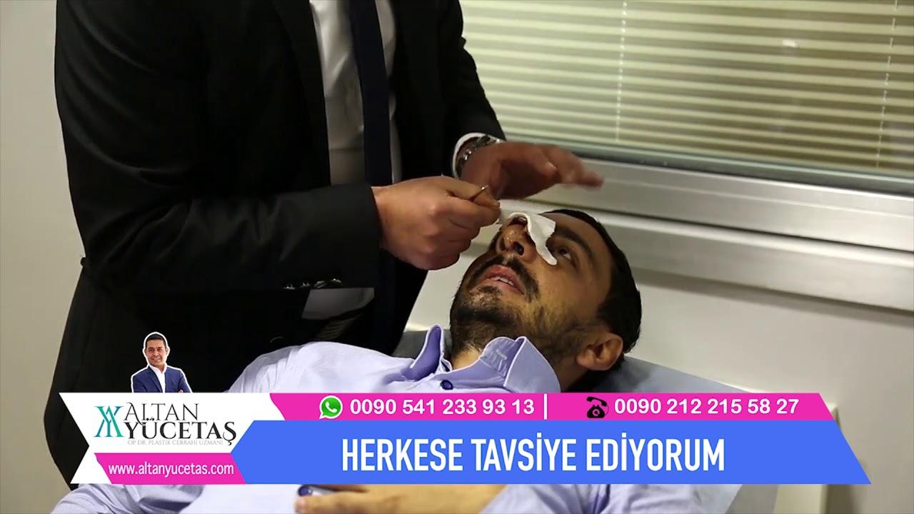 Burun Estetiği Sürecim 2018 - Op. Dr. Altan Yücetaşı Herkese ...