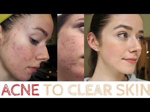 Acne to Clear Skin, my ROACCUTANE Journey *raw footage*