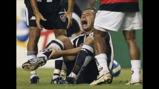 top 10 worst soccer injuries
